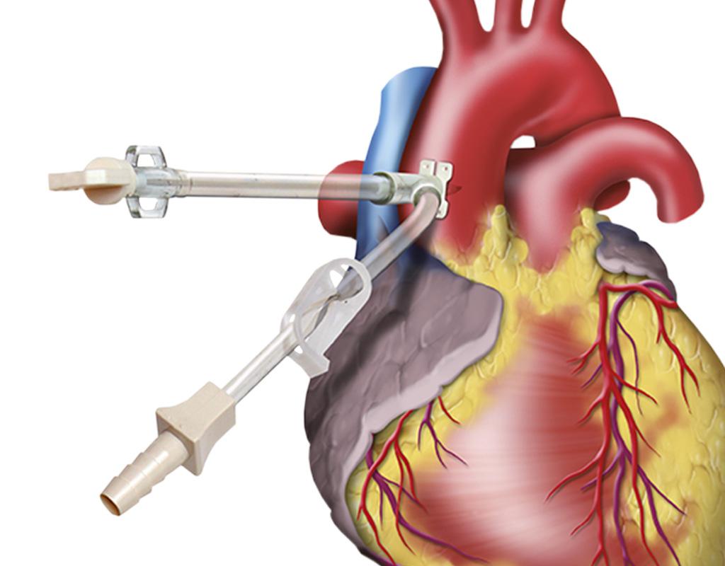 Cardioplegia Cannulae